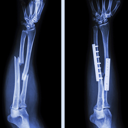ORTHOPEDIC & TRAUMA CARE-SPECIALISTS-DOCTORS-HOSPITALS-CENTERS-BTM LAYOUT-UDUPI GARDEN